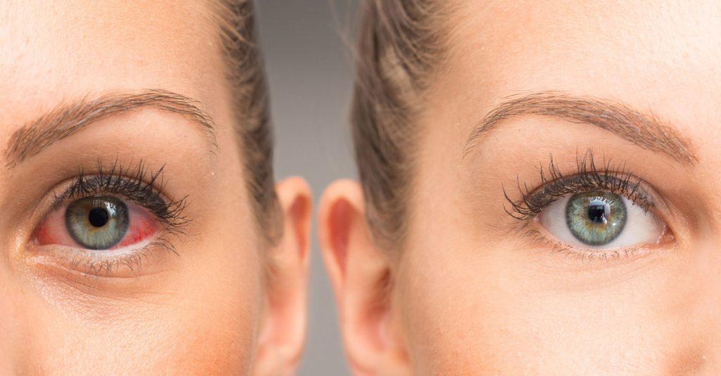 вирусна инфекција на очите