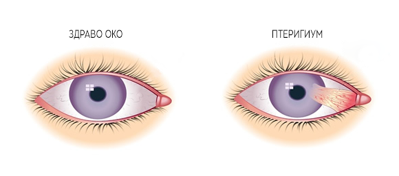 Птеригиум - разлика помеѓу здраво око и око со птеригиум
