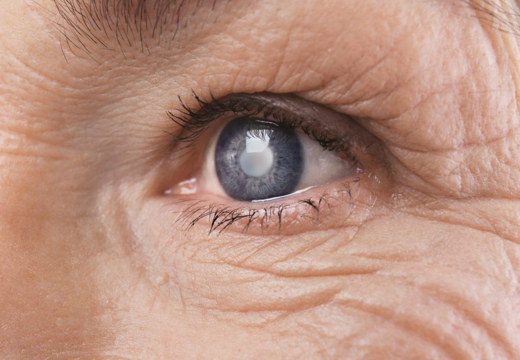 Око на баба со бела зеница - катаракта.