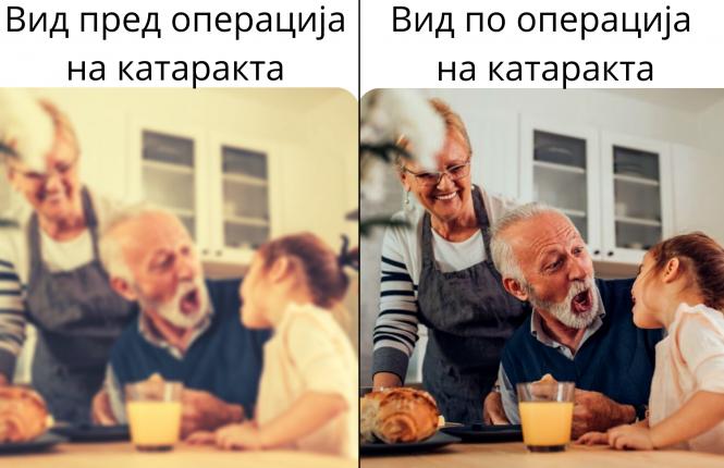 Катаракта - пред и после операција