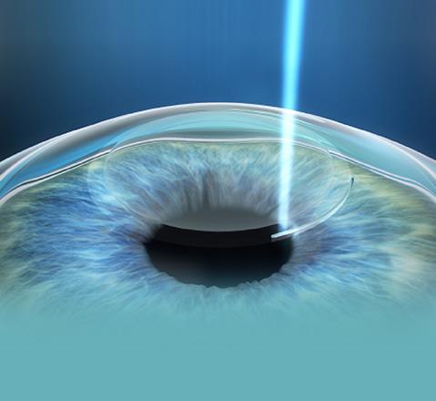 очила и ласерска корекција на диоптрија