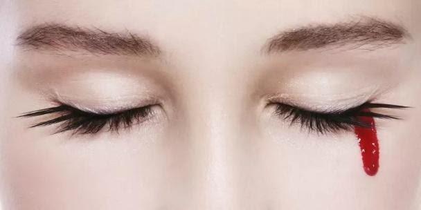 Хемолакрија - состојби на очите