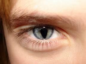 Мачји очи - состојби на очите