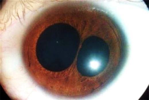 Поликорија - состојби на очите
