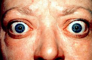 проптоза - состојби на очите