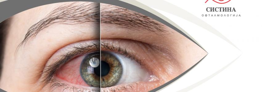суво око