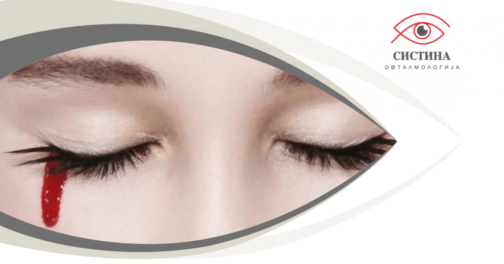 eye condition - women blood from eyes